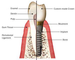 Dental implants Newcross